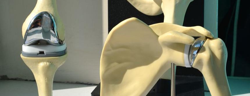 Эндопротезирование коленного сустава адреса строение локтевого сустава человека