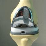 Эндопротезирование суставов, артроскопическая хирургия и лечение крупных суставов