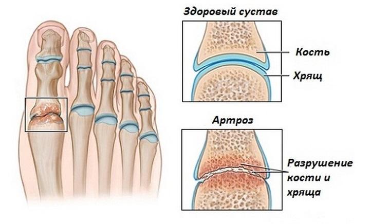 Суставы стопы врач гигрома сустава