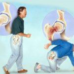 Всемирный день борьбы с остеопорозом